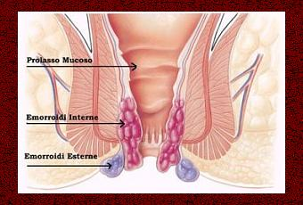 Patate a trombosi di nodo di gemorroidalny