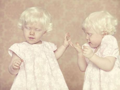 Albinos: gli angeli caduti di Gustavo Lacerda