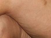 donne pelle buccia d'arancia