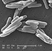 Il battere della Tubercolosi