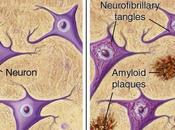 deficit zolfo, morbo Alzheimer Parkinson