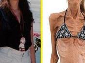 Sara valeria mangiate dall'anoressia