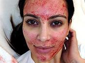 Kardashian mostra immagini shock ultimo trattamento estetico