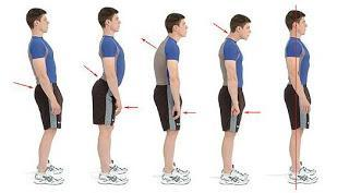 La Valutazione della Postura sul  Piano Sagittale