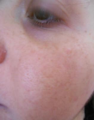 Appena provata: maschera viso in tessuto Iroha Nature....rimedio d'emergenza per appuntamenti galanti.