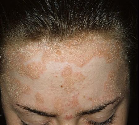 A psoriasi di una parte pelosa della testa