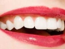 Ecco come sbiancare denti maniera naturale