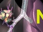 Oncologia: calcolatore tumori polmonari Android