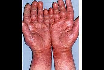 Allergia Al Lattice Materasso.Allergia Al Lattice Come Prevenirla Paperblog