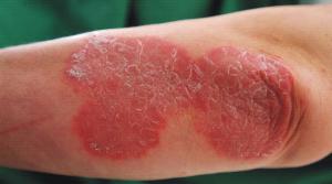 Tormenti il grasso da eczema