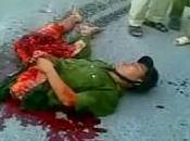 Dalla Cina modello tutti mutilati: Peng Shulin, l'incredibile uomo metà