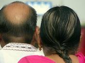 Ecco comuni cause della perdita capelli
