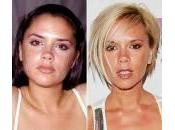 Prima dopo plastica facciale: Victoria Beckham, Halle Berry, Lindsay Lohan…