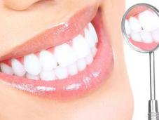 Denti bianchissimi senza andare dentista?
