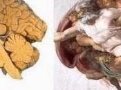 bufala Michelangelo neurologo