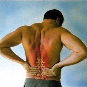 Le dimensioni di ernia in reparto cervicale di una spina dorsale per operazione