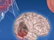 Ictus cerebrale, impariamo riconoscerlo