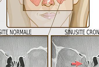 Sinusite - Farmaci per la Cura della Sinusite