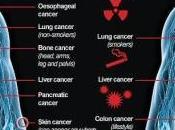 tumori sono dovuti alla sfortuna