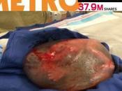 Foto bimbo nato nella placenta