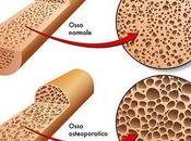 Osteoporosi: sintomi qualche consiglio prevenzione