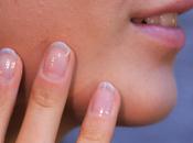 rimedi naturali eliminare cicatrici sulla pelle