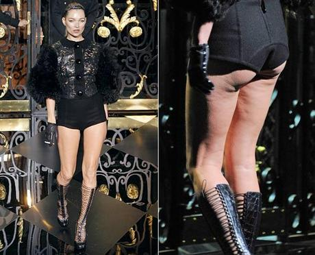 kate-moss-louis-vuitton-cellulite-590bes030911