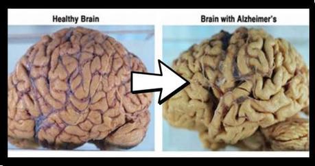 Novità su Alzheimer: si può prevenire e perfino far regredire