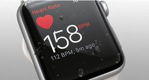 Apple-Watch ekg