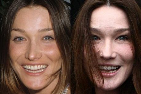 """Carla Bruni non ammette i ritocchini: """"meglio invecchiare che avere la faccia strana"""""""