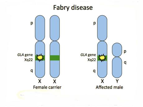 Corso multidisciplinare sulla Malattia di Fabry venerdì a Sassari