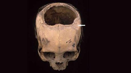 Questo individuo vissuto in Perù tra il 400 e il 200 a.C. ha subito una frattura cranica (freccia bianca) trattata probabilmente con una trapanazione, morendo circa due settimane dopo l'intervento.