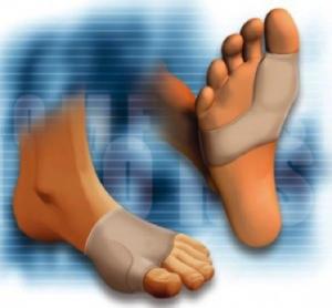 Alluce valgo: sintomi, cure ed esercizi