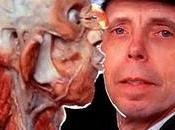 L'uomo sbuccia cadaveri: Gunther Hagens