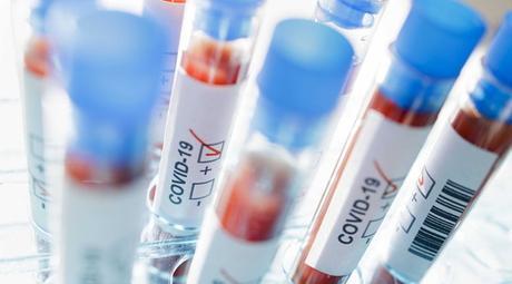 Coronavirus, prima vittima in Argentina e in America latina - Tgcom24