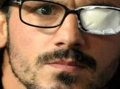 Milan: Gennaro Gattuso costretto operazione all'occhio vedo