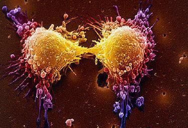 Tumori scoperta la possibilità di fermare il Cancro - Ma moriranno ancora in tanti -