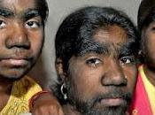 Foto giorno febbraio 2012 donne licantrope malate ipertricosi