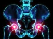 Protesi all'anca difettose: Federconsumatori annuncia class action