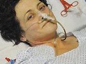 VERI EROI: Simonetta Severi donato midollo rene salvare figlio malato leucemia.